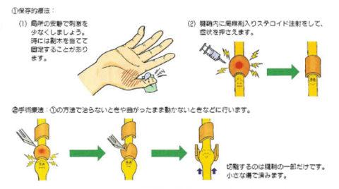ばね指 治療方法イラスト