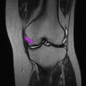 大腿骨顆部骨壊死 MRI