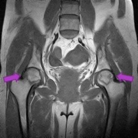 大腿骨頭壊死 MRI
