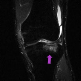 脛骨骨挫傷 MRI